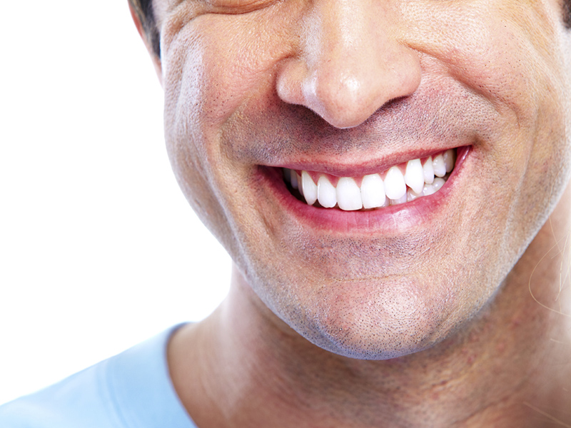 Dental Tooth Whitening Services